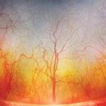 صورة مجهرية مدهشه لعروق العين البشرية أشبه بغابة مشتعلة سبحان الله