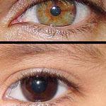 هناك أشخاص يملكون لونين مختلفين لعيون...