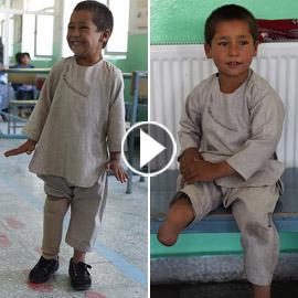فيديو مؤثر.. قصة الطفل الأفغاني مبتور القدم الذي خطف قلوب العالم